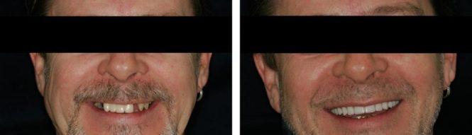 implantologia20