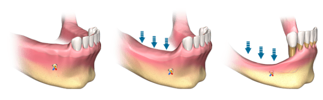 multiple-tooth-bone-loss (1)