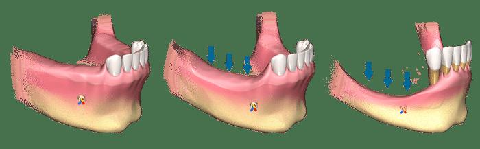 multiple-tooth-bone-loss (1)
