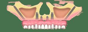 zygomaticus-dental-implant-type