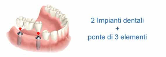 2-impianti-ponte-3-denti