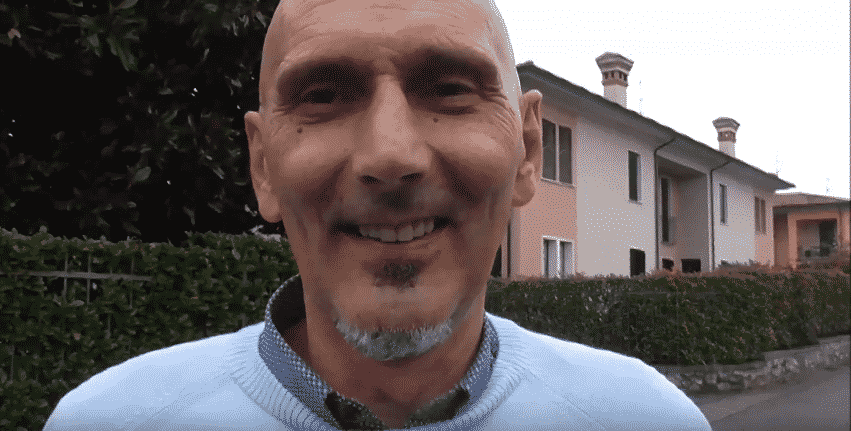 Implantologia dentale senza osso: Impianti Zigomatici Testimonianza Angelino