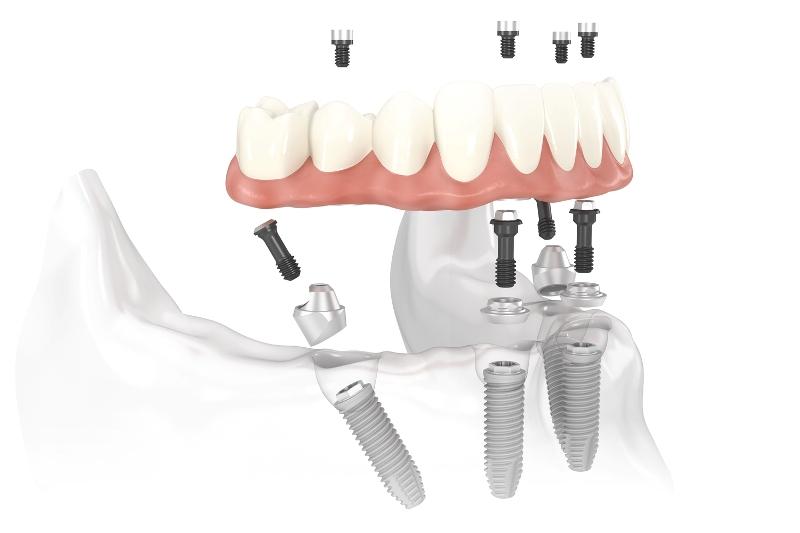 Dentisti Croazia: Studi dentistici croati in Italia per visita e preventivi stessi prezzi dentista croazia.