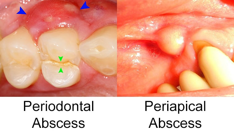 Abscess Tooth Look What Do
