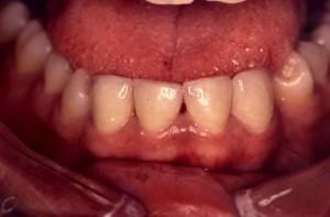 Correction d'espace par facette dentaire céramique