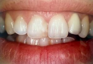 Dents colorées réparation par facette dentaire dentiste amouyal paris 16