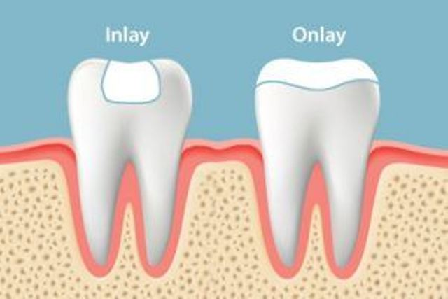 dentiste Richard Amouyal docteur Paris 16 facette dentaire