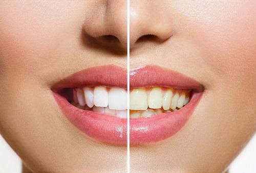 Détartrage des dents richard amouyal dentiste Paris 16
