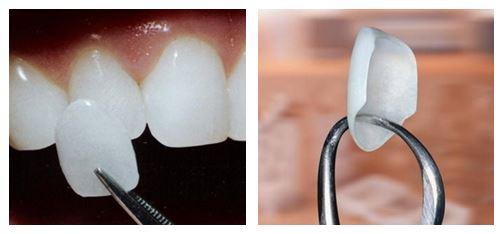Facettes Dentaires paris