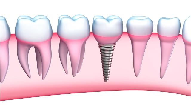 Implants dentaires paris 16