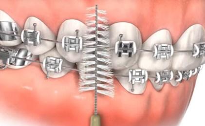 牙齒矯正後的日常保養