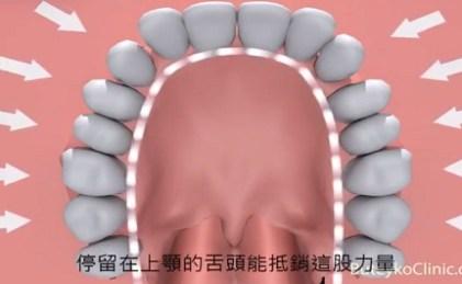 口呼吸的病患, 牙齒矯正
