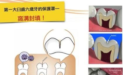 🎯第一大臼齒六歲牙的保護罩—窩溝封填!🎯
