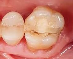 贋復牙科 - dentistko 光遠牙醫診所 光遠 光遙 柯秀伶 佳里 植牙 矯正