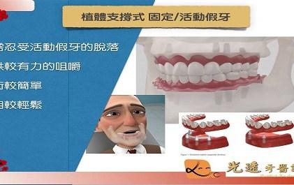 〖  牙牙學院-植體支撐全口覆蓋式固定/活動假牙  〗