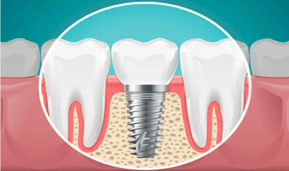 Dental implants Dunedin fl