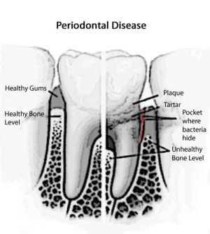 Everything You Need To Know About Gum Diseases  Dr Tan