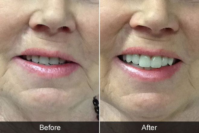 Dentures Before & After Pictures   Kevin Manners Denture ...