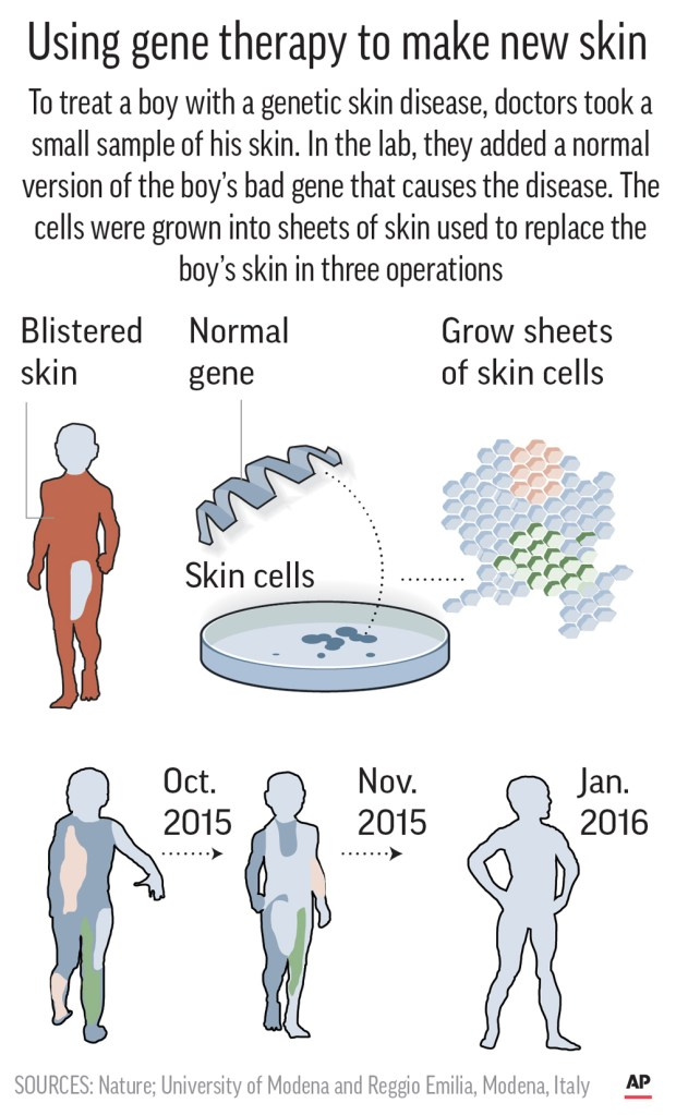 Diagram shows large skin graft treatment incorporating gene therapy.