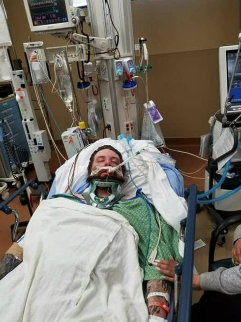 Tyler Bullock has been hospitalized in an intensive care unit for head trauma with bleeding in his brain, according to his sister, Kristal Beecher.