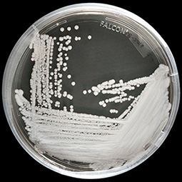 A strain of Candida auris cultured ...