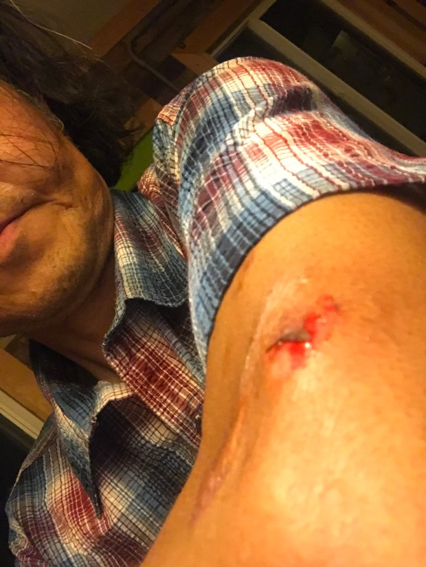 Denver Post photographer struck twice by pepper balls during George Floyd protest