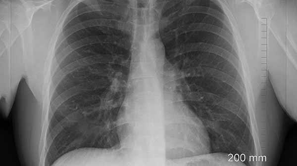 Lungenkrebs Erkennen