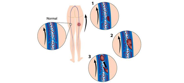 thrombose entstehung risikofaktoren