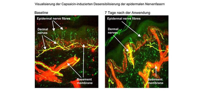 Behandlung neuropathischer Schmerzen mit dem Wirkstoff