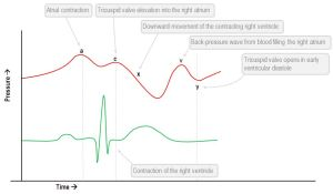 Interpretation of the central venous pressure waveform  Deranged Physiology