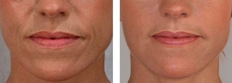 Dermal Fillers Melbourne - Specialist Cosmetic Clinic ...