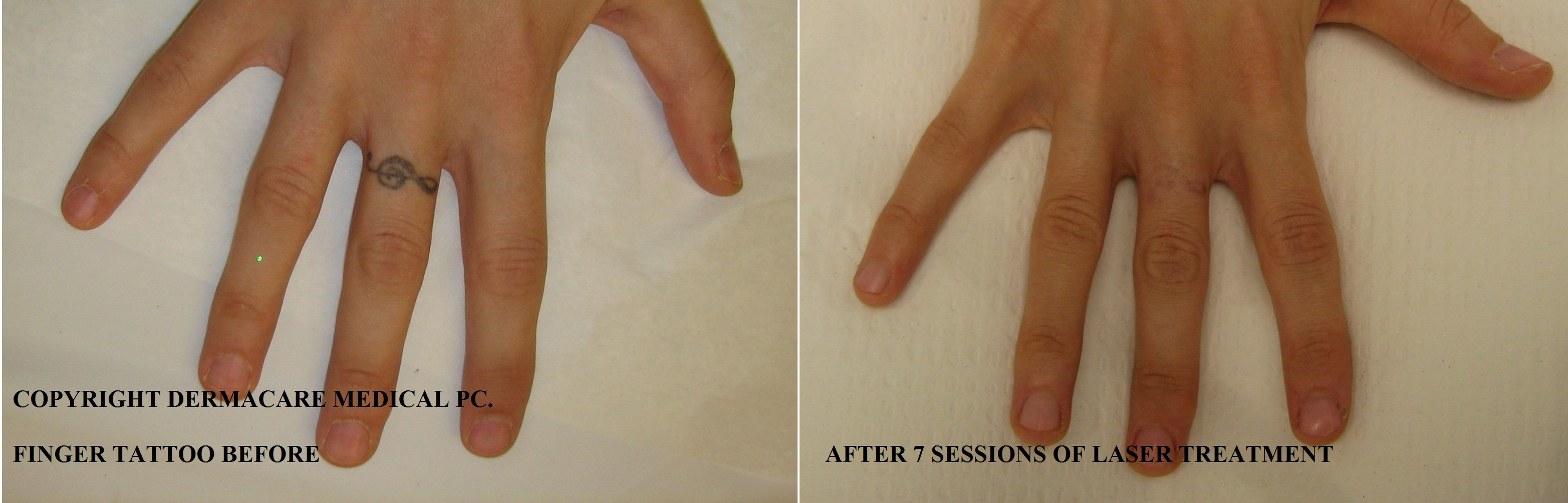 Besshamann for Laser tattoo removal pictures after 1 treatment