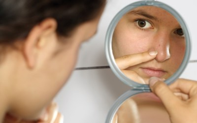 Top 10 tips to get rid of acne