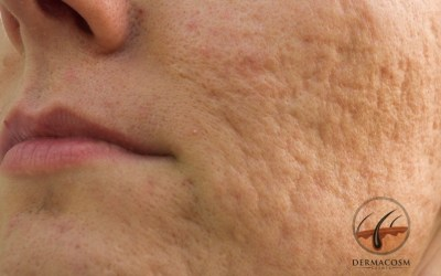 How to reduce an atrophic acne scar?