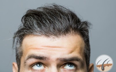 Gray hair – is there any cure?