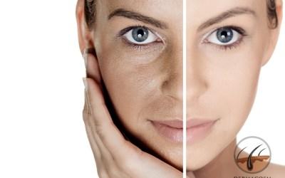 Skin-whitening with Glutathione: is it safe?