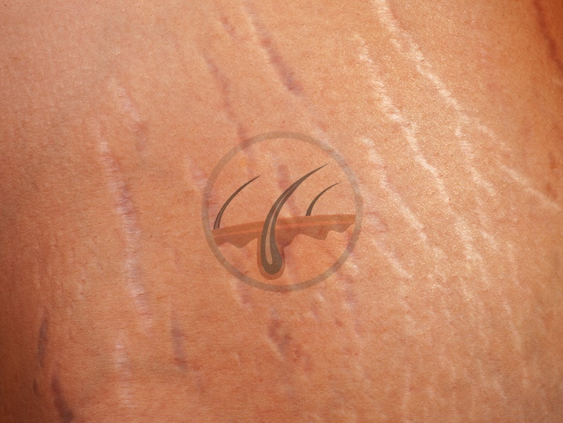 Stretch marks – can you get rid of them?