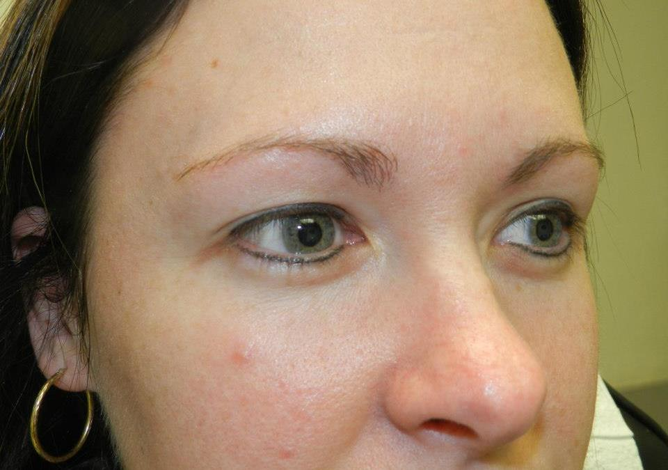 Permanent Eyeliner Before and After