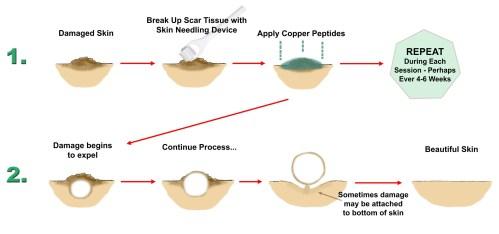 small resolution of damage skin diagram