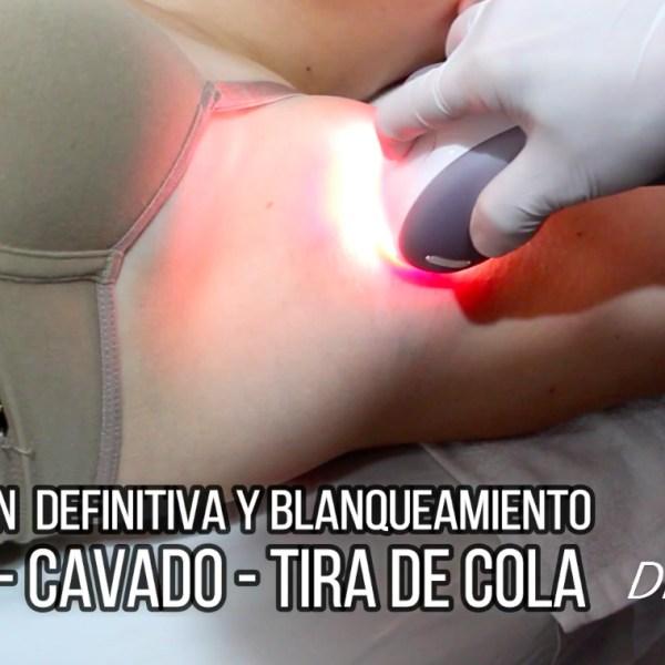depilacion-definitiva-de-axilas-con-laser-luz-pulsada