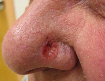 Les couches avec la varicosité de la bassine