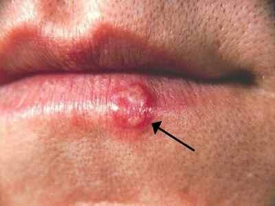 Soigner l'herpes de la lèvre