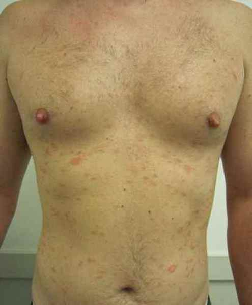 pityriasis rose de gibert