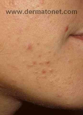 acné de la femme