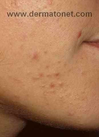acné mixte