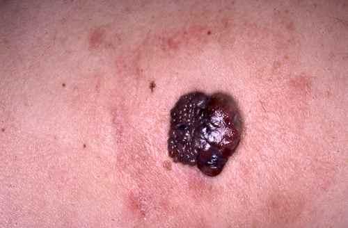 Melanome le m lanome de la peau dermatologue en ligne - Enlever tache sur cuir clair ...