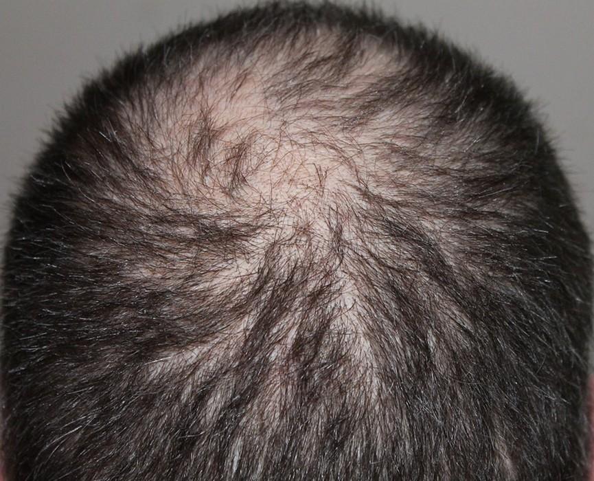 medecin pour chute de cheveux