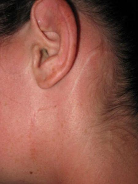 PRENDRE SOIN D'UNE CICATRICE : avoir une belle cicatrice ...