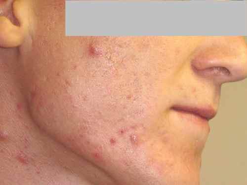 CICATRICES ACNE   atténuer les cicatrices d acné sur le visage ... 75d805189ed