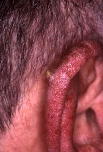 CANCER SPINOCELLULAIRE : le carcinome epidermoide (spino ...